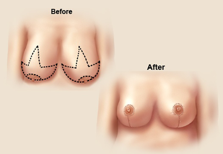 Breast Reduction Procedure 80 Off Only At The Hollywood Makeover